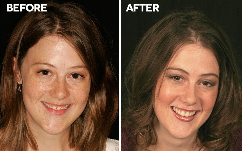 Smile Makeover in Yaletown