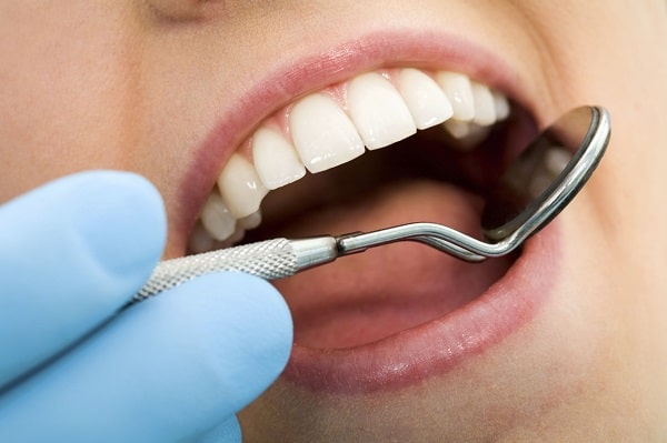 Mercury Free Fillings by your Vancouver dentist