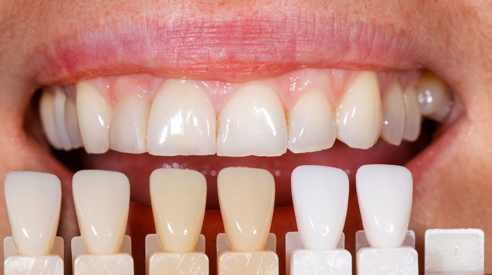 Porcelain vs. Composite Veneers