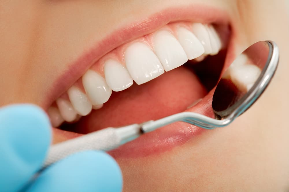 Cleanings at your Vancouver dentist